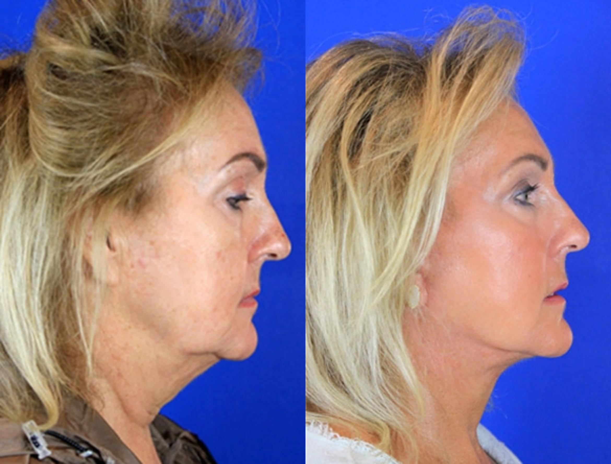 Facelift / Reflection Lift Case 88 Before & After Right Side | Brentwood, TN | Youthful Reflections