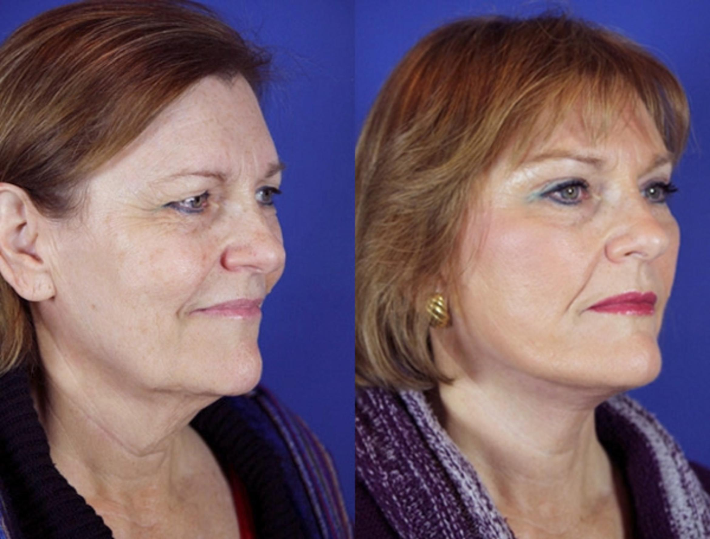 Facelift / Reflection Lift Case 9 Before & After Right Oblique | Brentwood, TN | Youthful Reflections