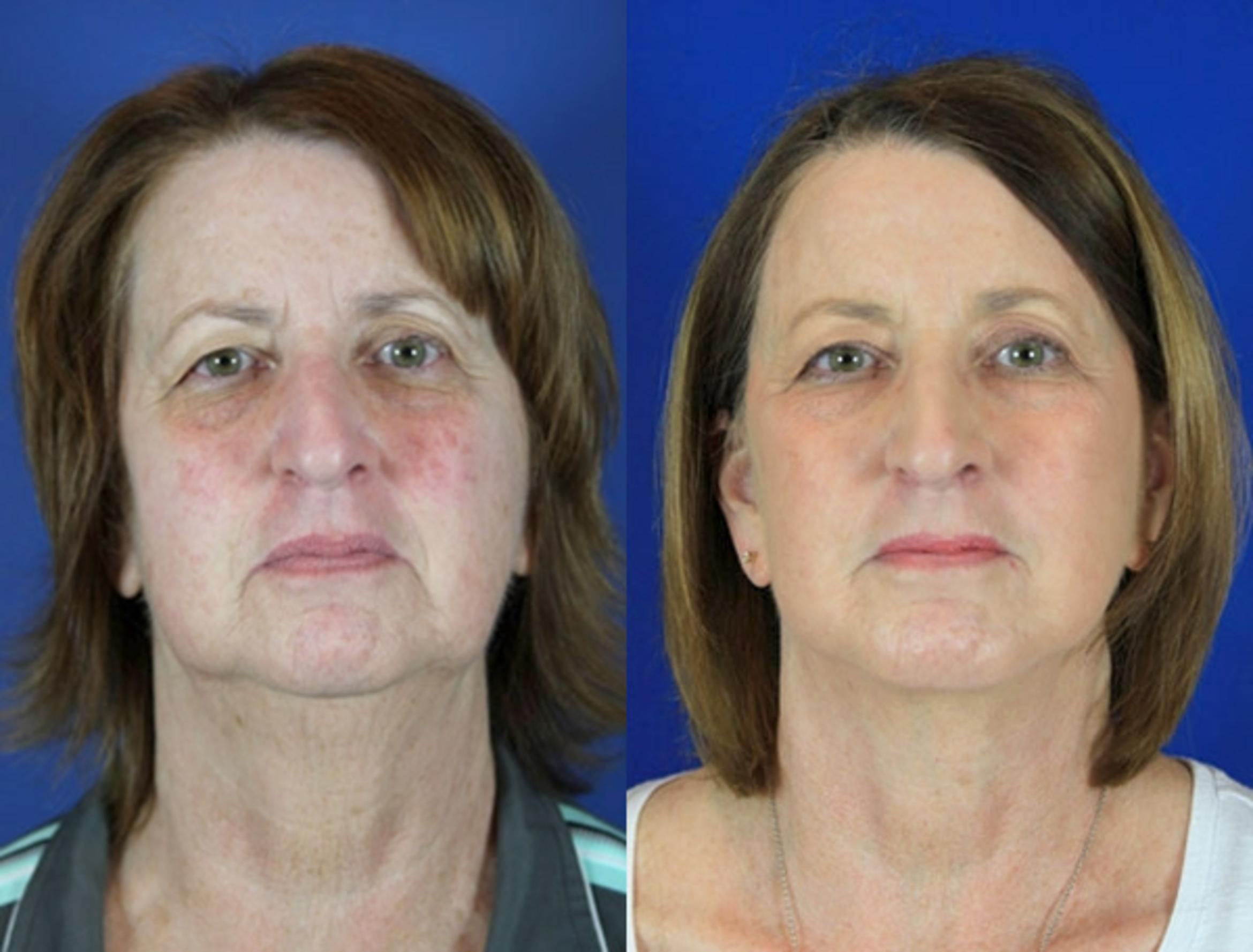 Facelift / Reflection Lift Case 90 Before & After Front | Brentwood, TN | Youthful Reflections