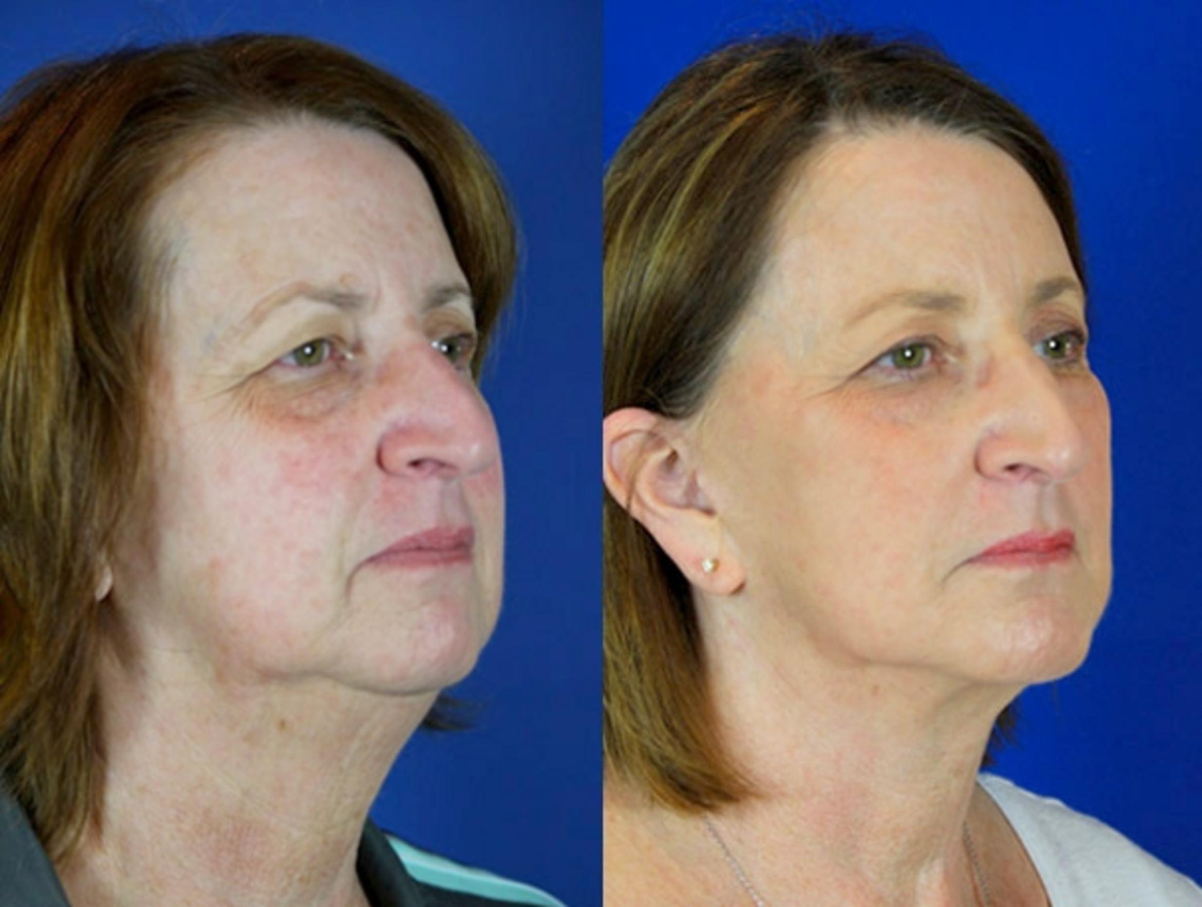 Facelift / Reflection Lift Case 90 Before & After Right Oblique | Brentwood, TN | Youthful Reflections