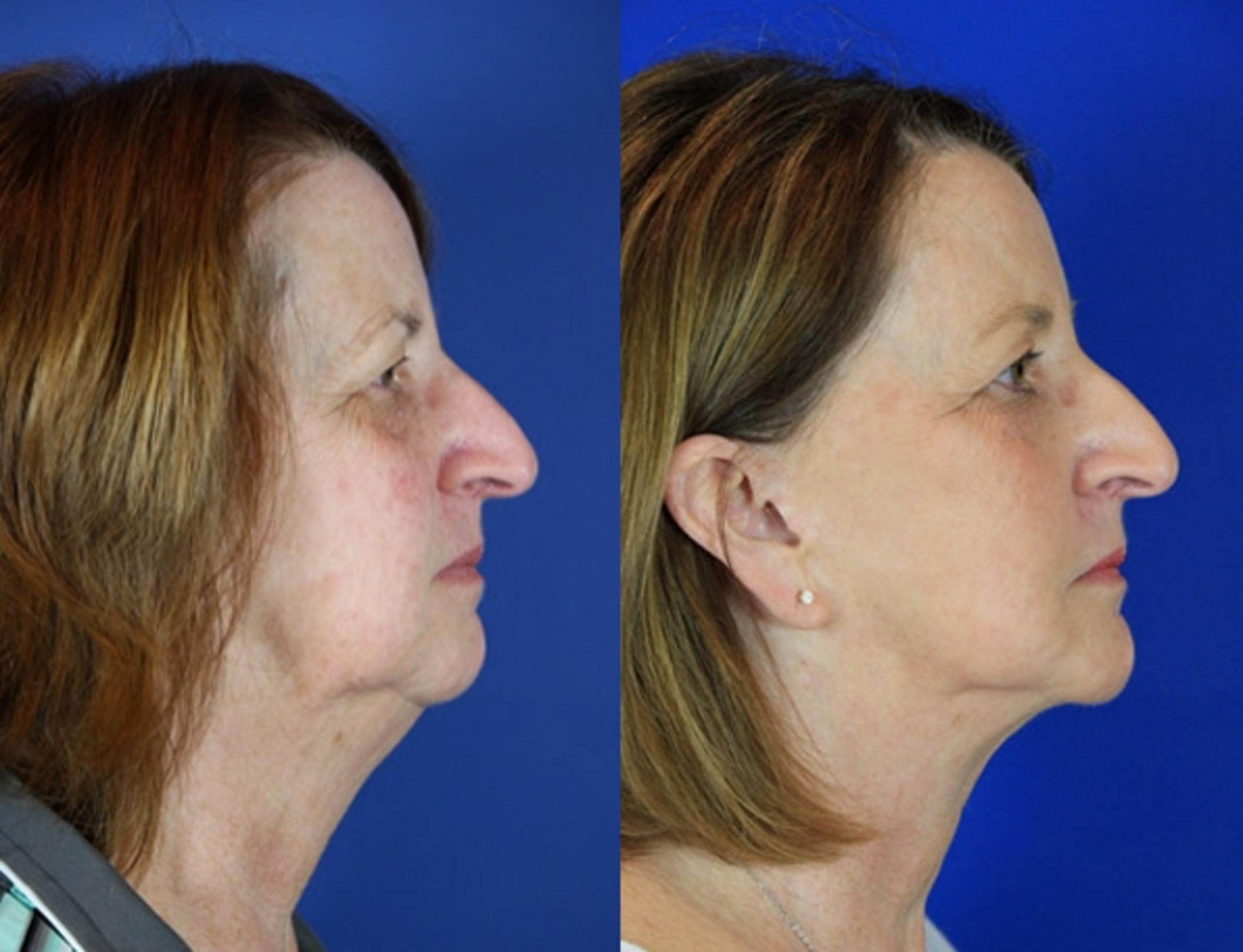 Facelift / Reflection Lift Case 90 Before & After Right Side | Brentwood, TN | Youthful Reflections