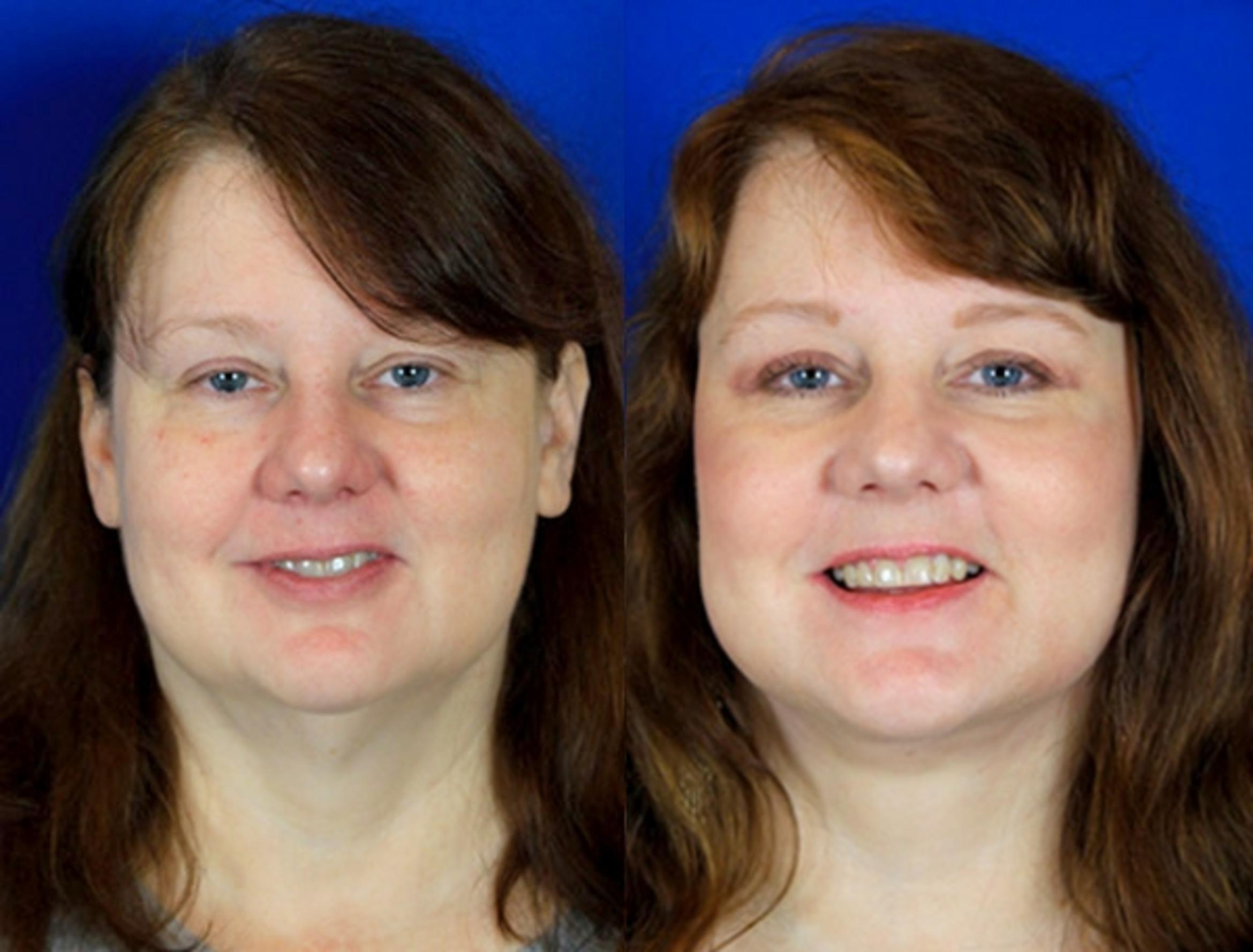 Facelift / Reflection Lift Case 91 Before & After Front | Brentwood, TN | Youthful Reflections