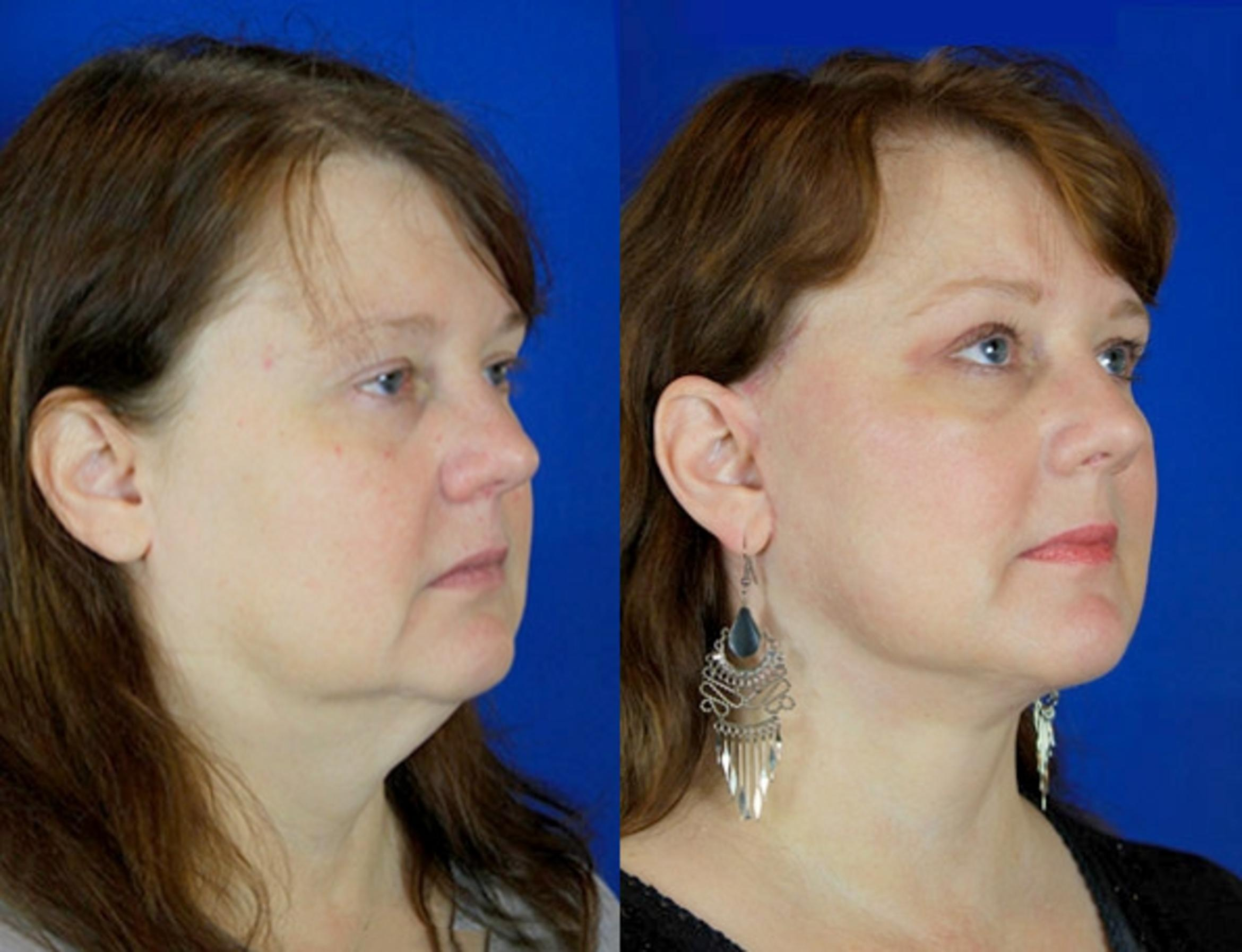 Facelift / Reflection Lift Case 91 Before & After Right Oblique | Brentwood, TN | Youthful Reflections