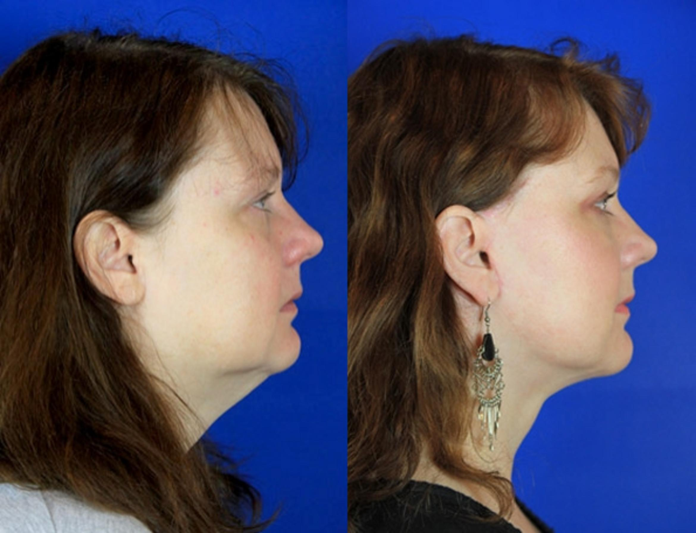 Facelift / Reflection Lift Case 91 Before & After Right Side | Brentwood, TN | Youthful Reflections