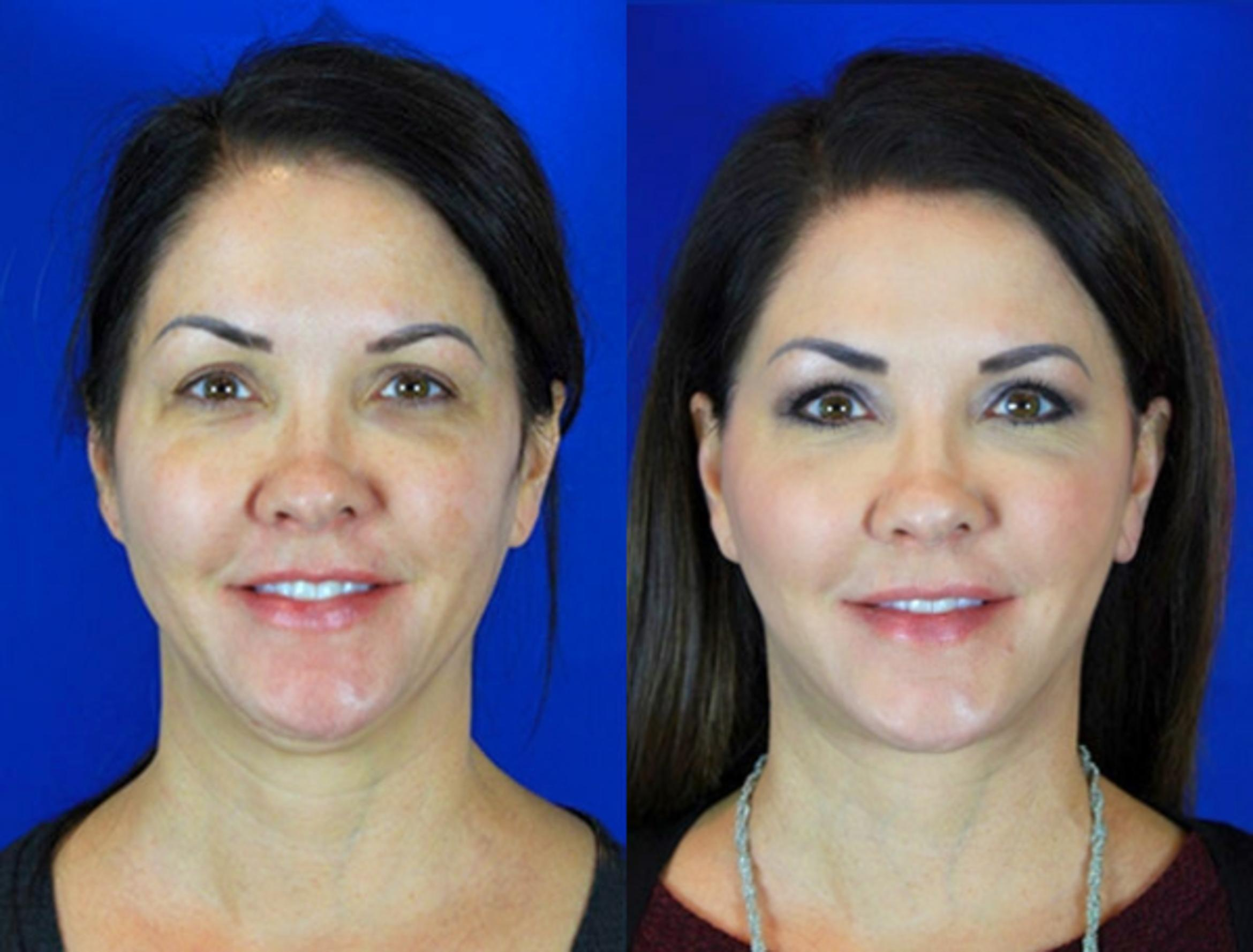 Facelift / Reflection Lift Case 93 Before & After Front | Nashville, TN | Youthful Reflections