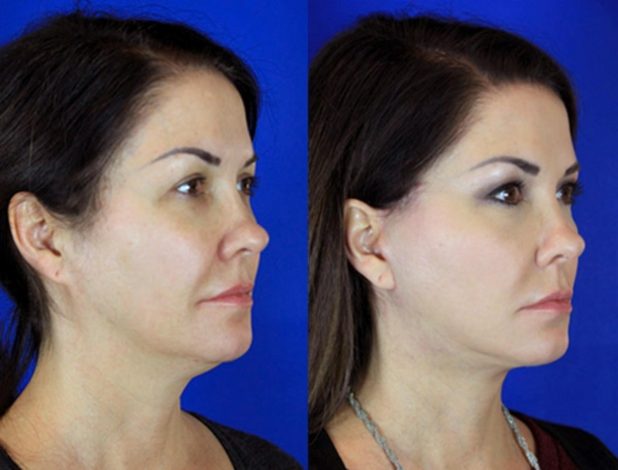 Facelift / Reflection Lift Case 93 Before & After Right Oblique | Nashville, TN | Youthful Reflections