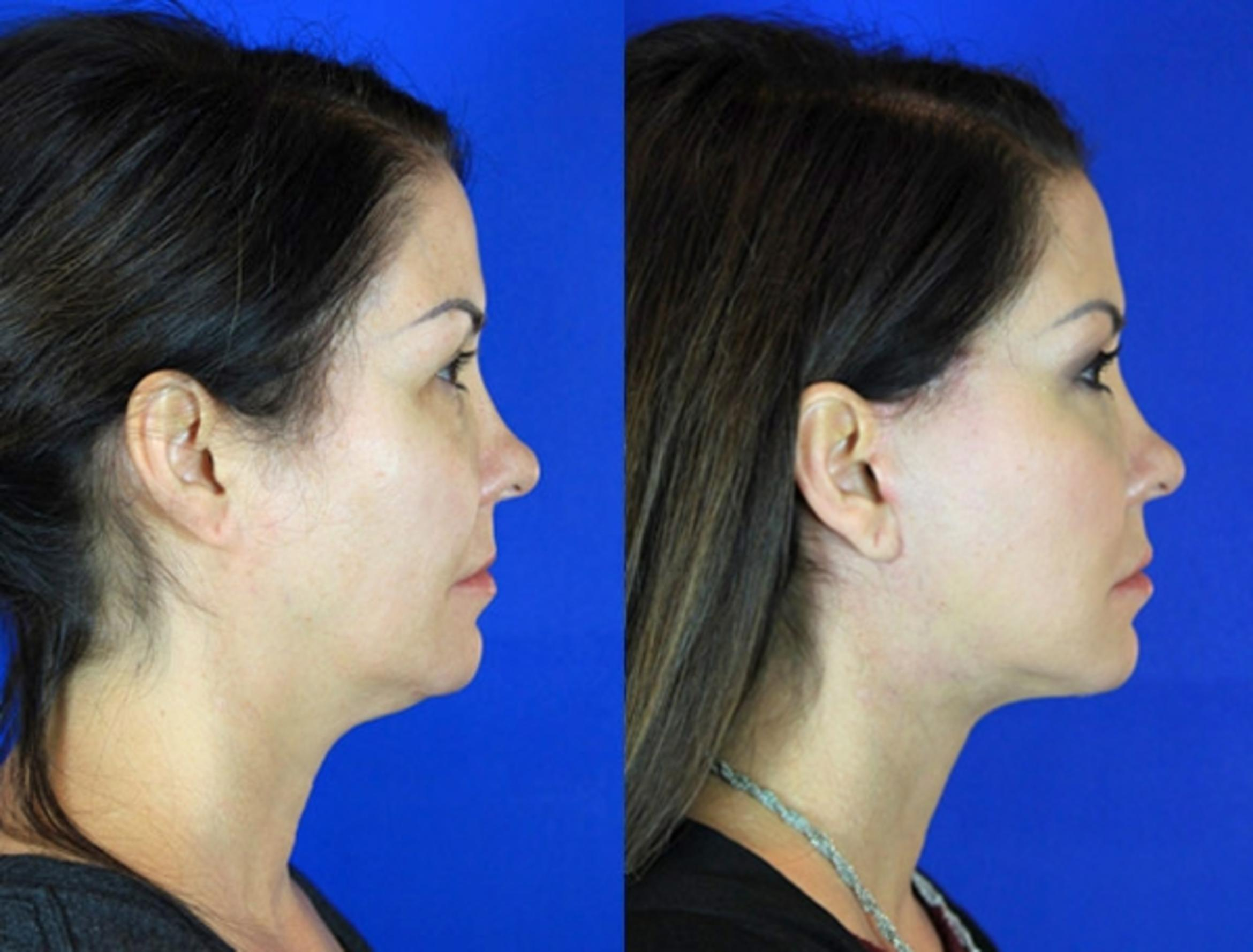 Facelift / Reflection Lift Case 93 Before & After Right Side | Brentwood, TN | Youthful Reflections
