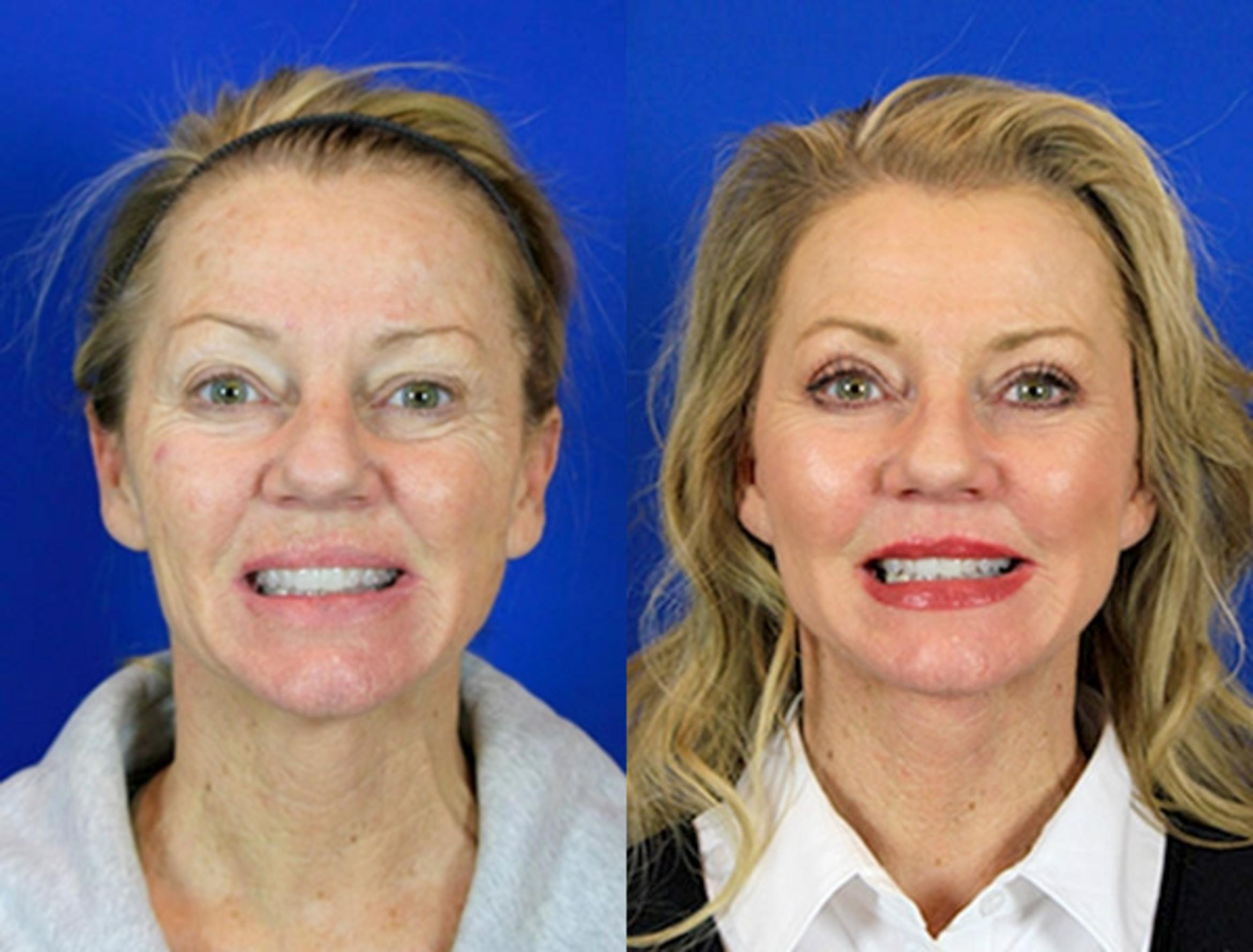 Upper Blepharoplasty Case 95 Before & After Front | Nashville, TN | Youthful Reflections