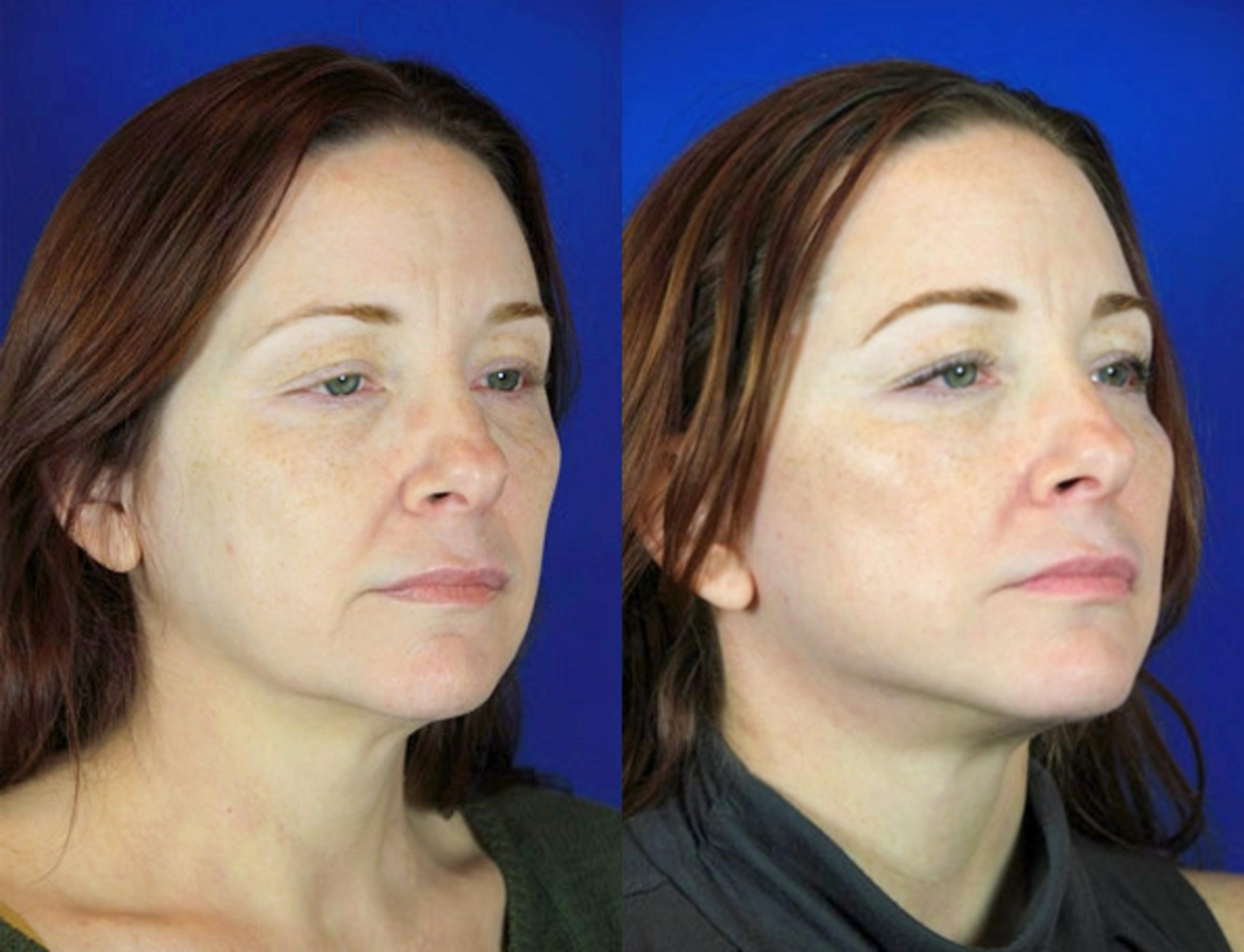 Facelift / Reflection Lift Case 97 Before & After Right Oblique | Brentwood, TN | Youthful Reflections