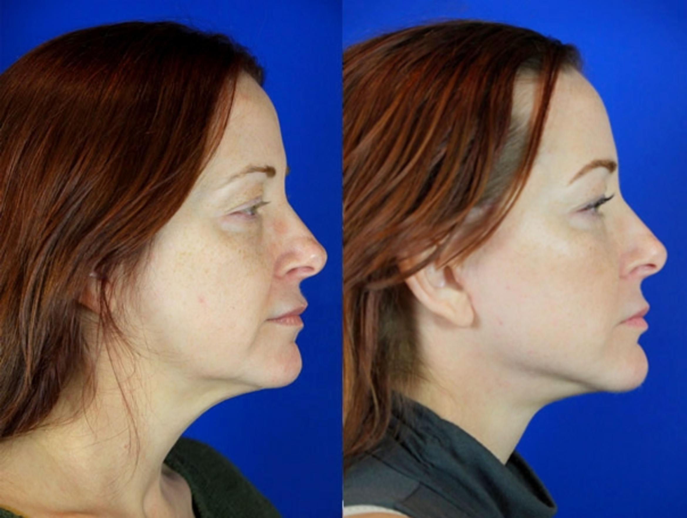 Facelift / Reflection Lift Case 97 Before & After Right Side | Brentwood, TN | Youthful Reflections