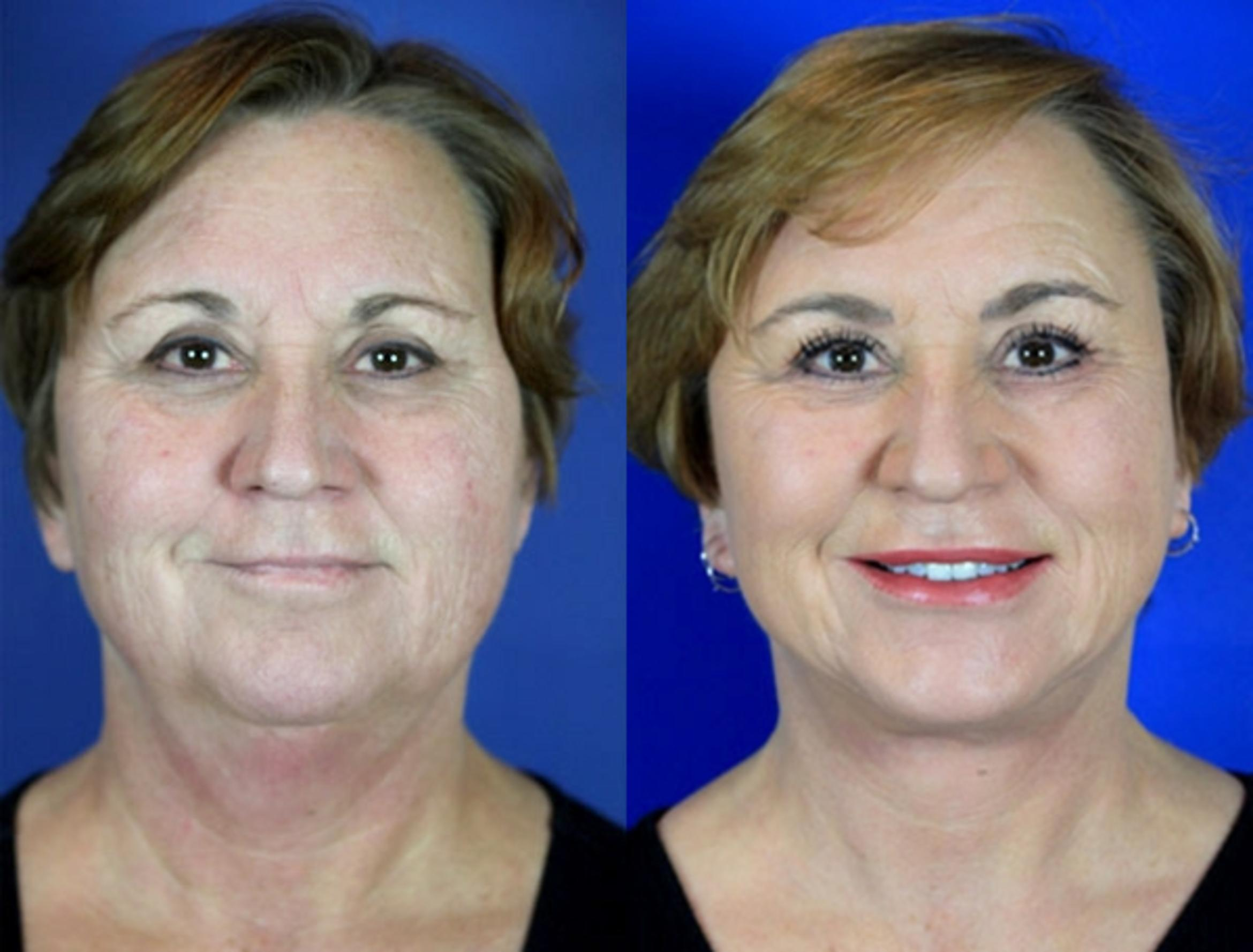 Facelift / Reflection Lift Case 98 Before & After Front | Brentwood, TN | Youthful Reflections