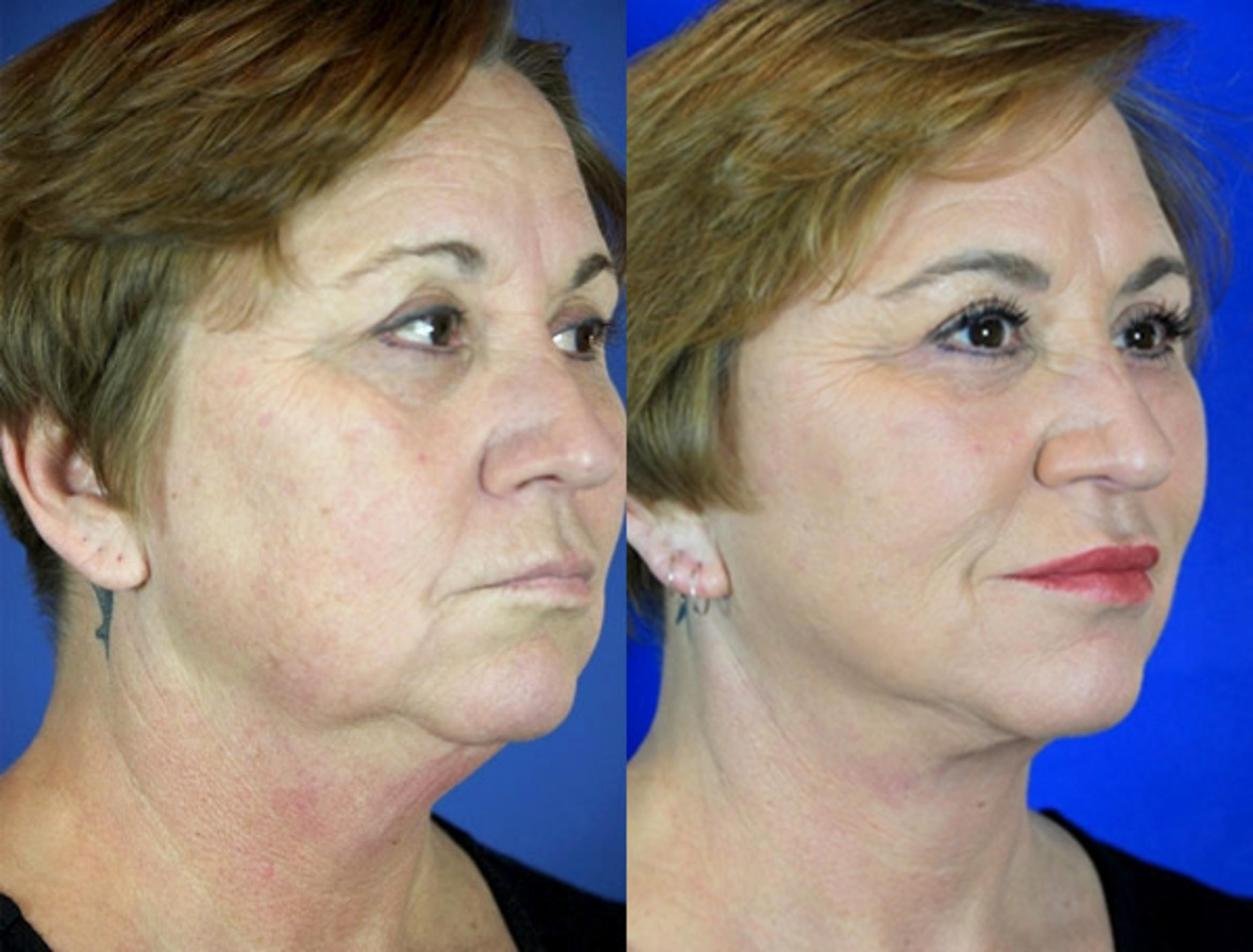Facelift / Reflection Lift Case 98 Before & After Right Oblique | Brentwood, TN | Youthful Reflections