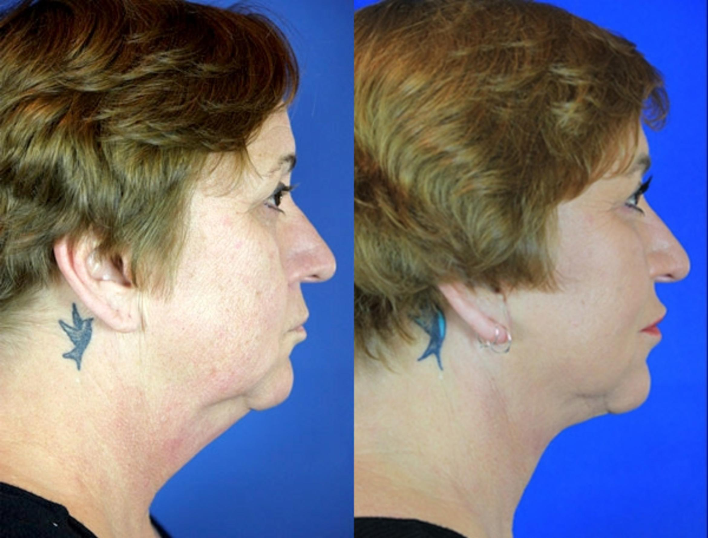 Facelift / Reflection Lift Case 98 Before & After Right Side | Brentwood, TN | Youthful Reflections