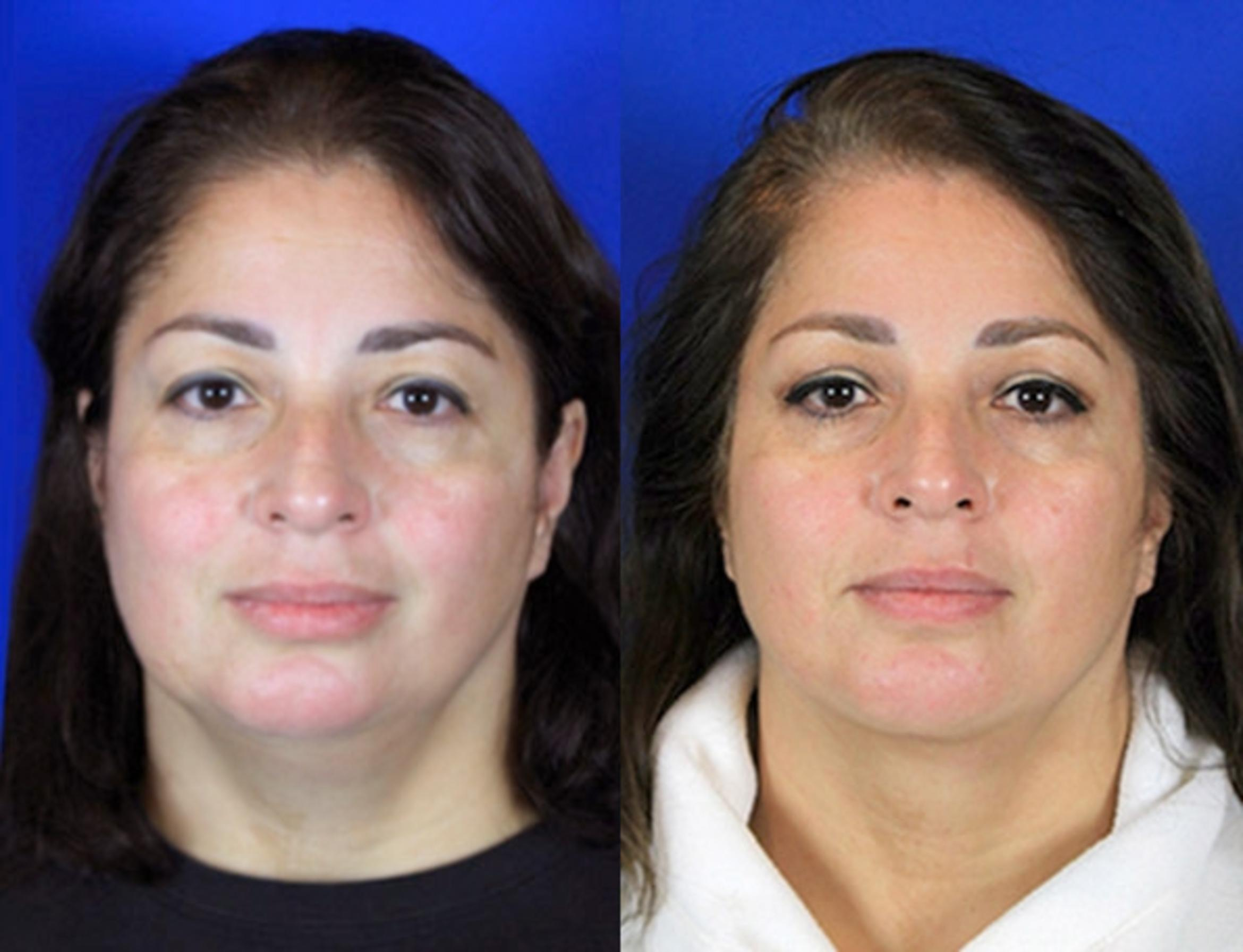 Neck Liposuction Case 94 Before & After Front | Brentwood, TN | Youthful Reflections