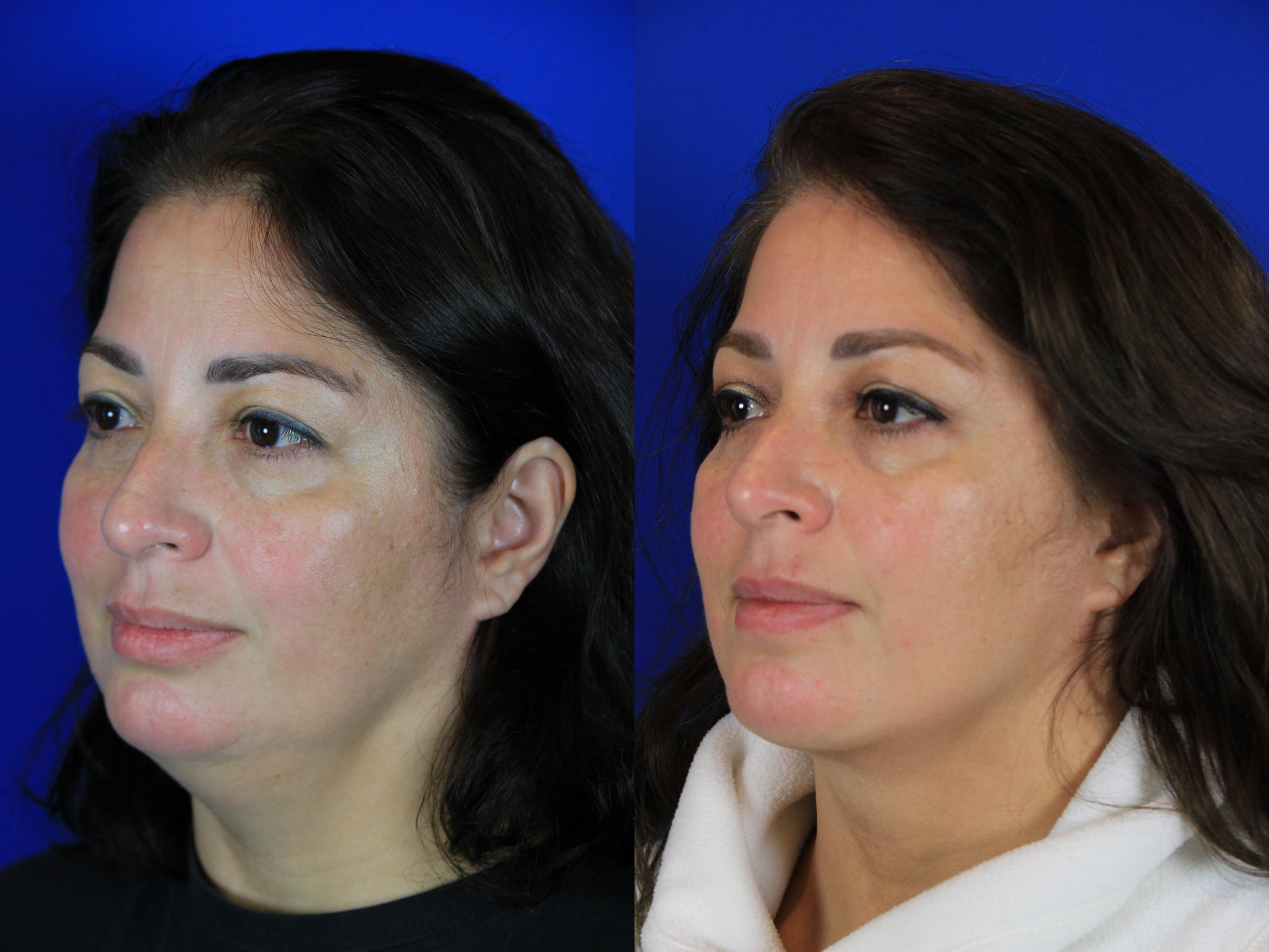 Neck Liposuction Case 94 Before & After Left Oblique | Brentwood, TN | Youthful Reflections