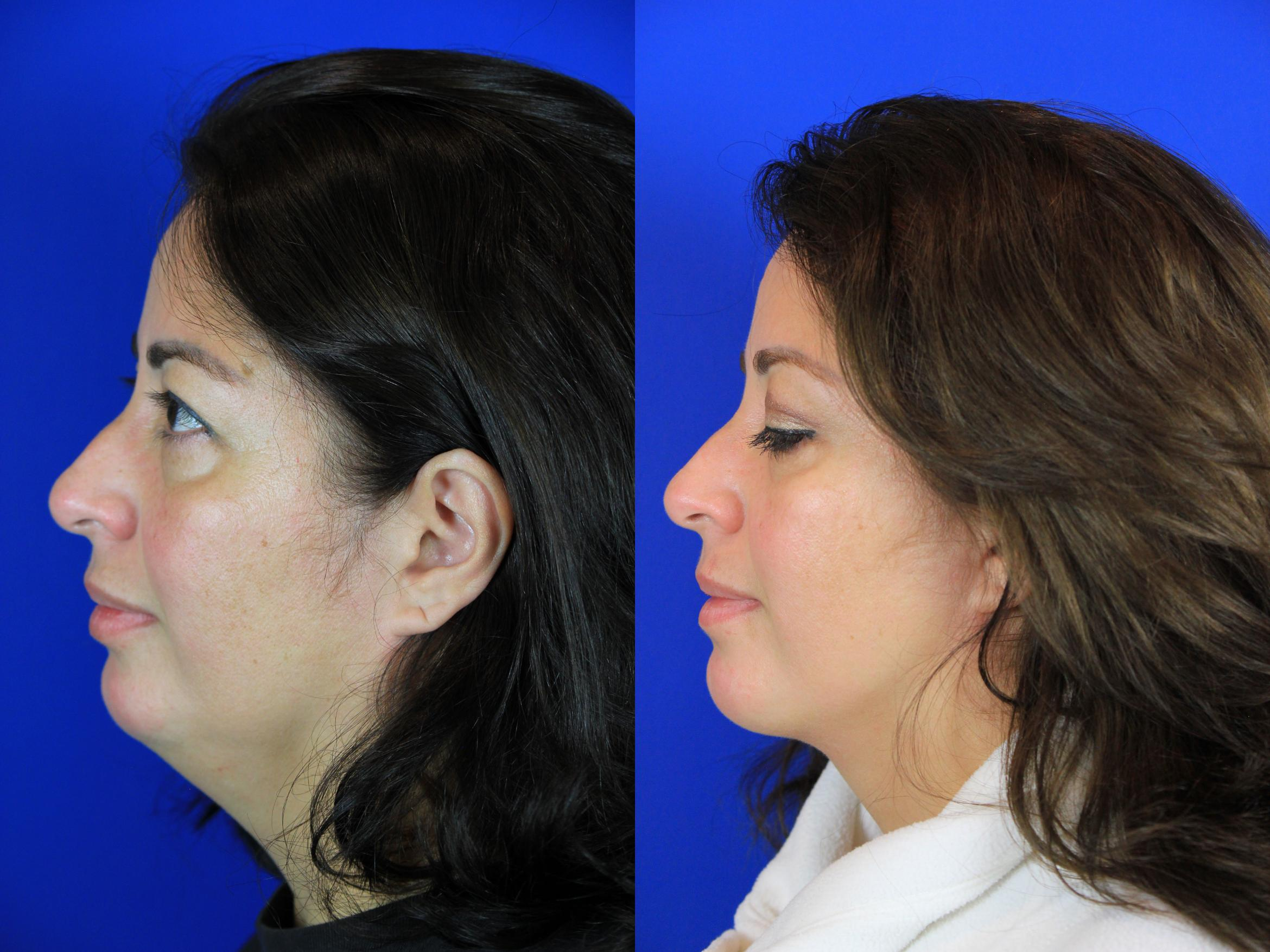 Neck Liposuction Case 94 Before & After Left Side | Brentwood, TN | Youthful Reflections