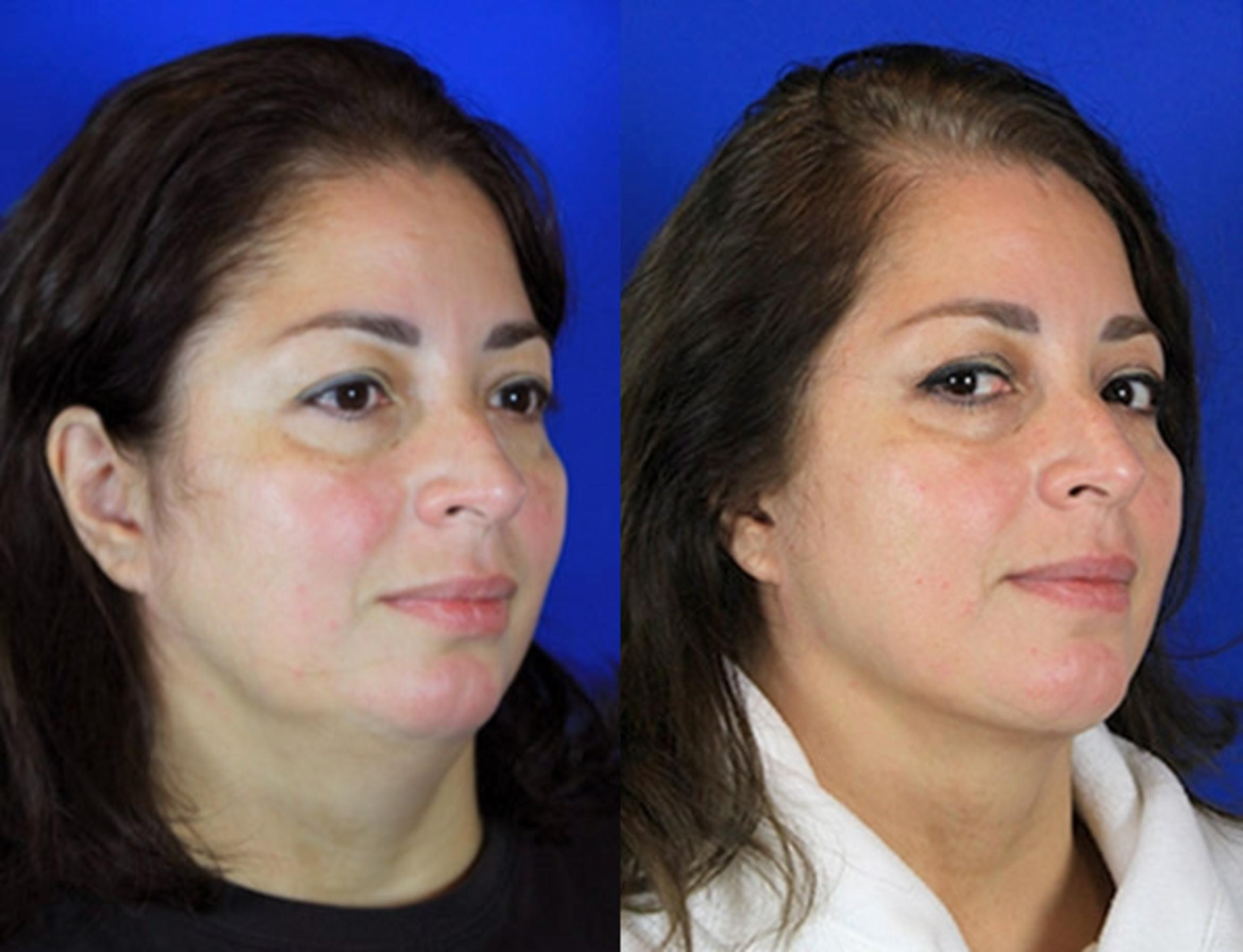 Neck Liposuction Case 94 Before & After Right Oblique | Brentwood, TN | Youthful Reflections