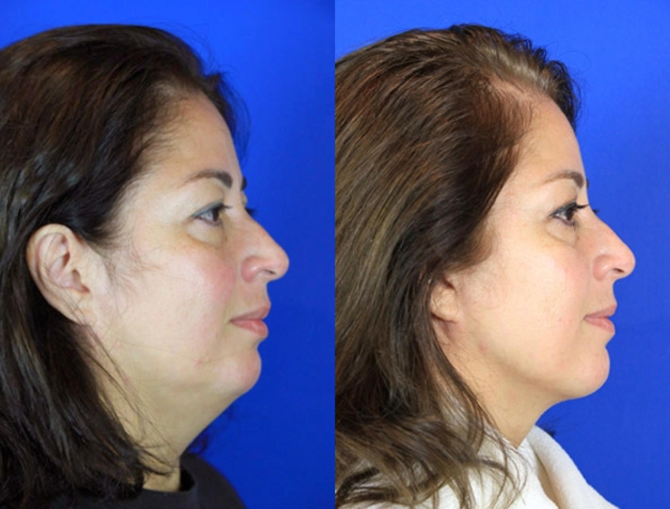 Neck Liposuction Case 94 Before & After Right Side | Brentwood, TN | Youthful Reflections